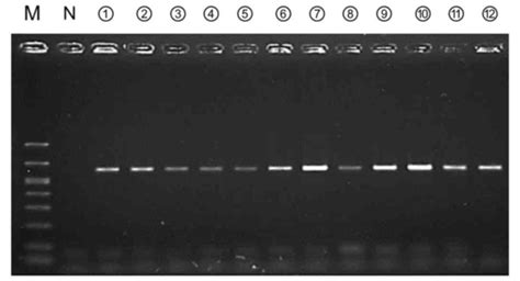 Amplification of bacterial genomic DNA from all ascitic