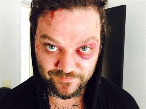 Bam Margera Gets Knocked Out In Iceland